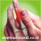 Sakit Jari - Obat Tradisional Fengshibao | www.obattradisional.co.id