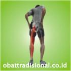 Sakit Pantat Pinggul Paha Betis Kaki - Obat Tradisional Fengshibao | www.obattradisional.co.id