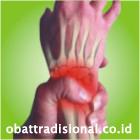 Sakit Pergelangan Tangan - Obat Tradisional Fengshibao | www.obattradisional.co.id