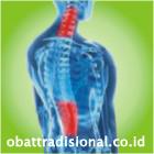 Sakit Ruas Tulang Belakang - Obat Tradisional Fengshibao | www.obattradisional.co.id